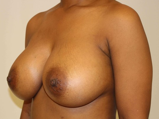 Breast Augmentation 3/4 After