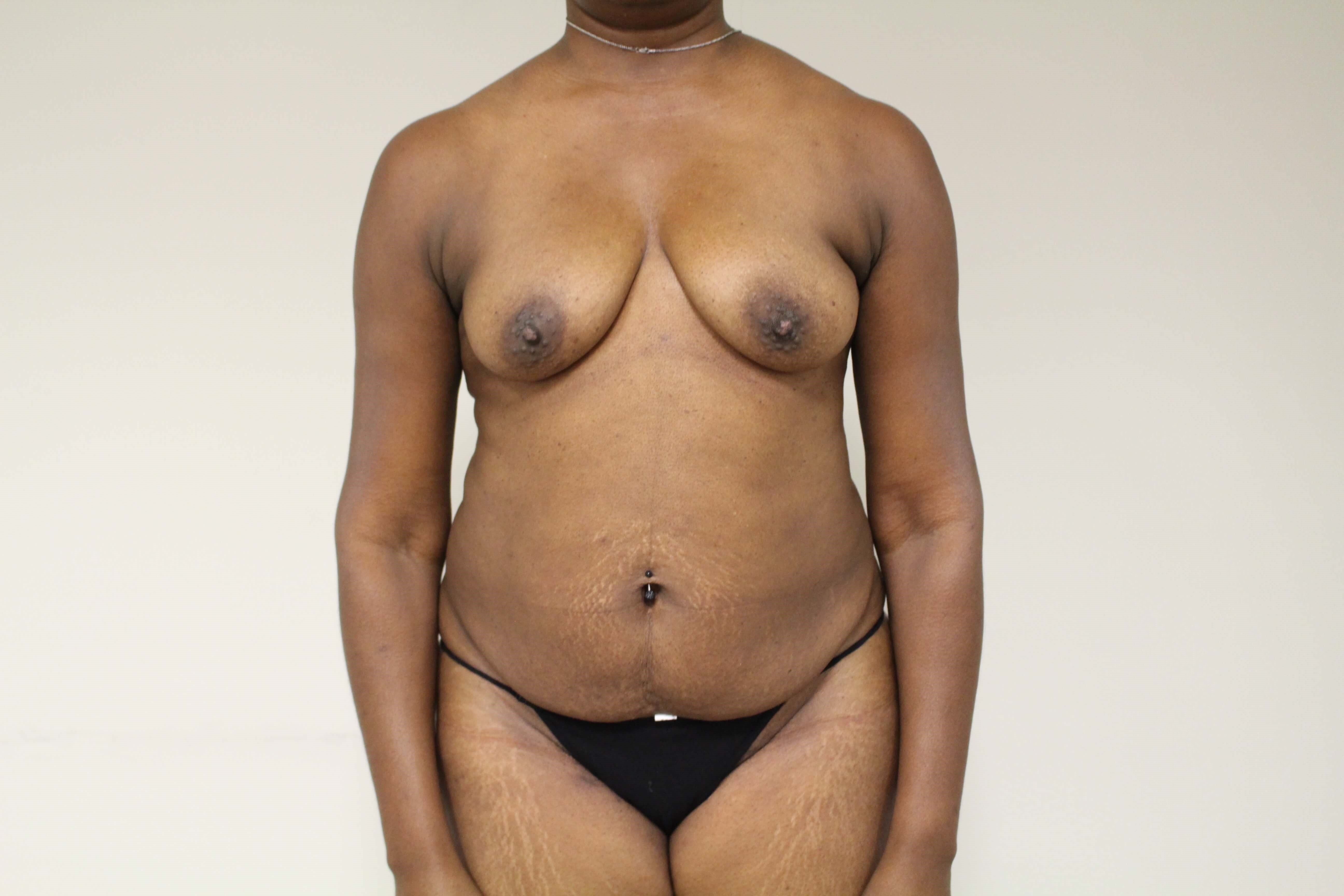 Anterior Lipoabdominoplasty Before