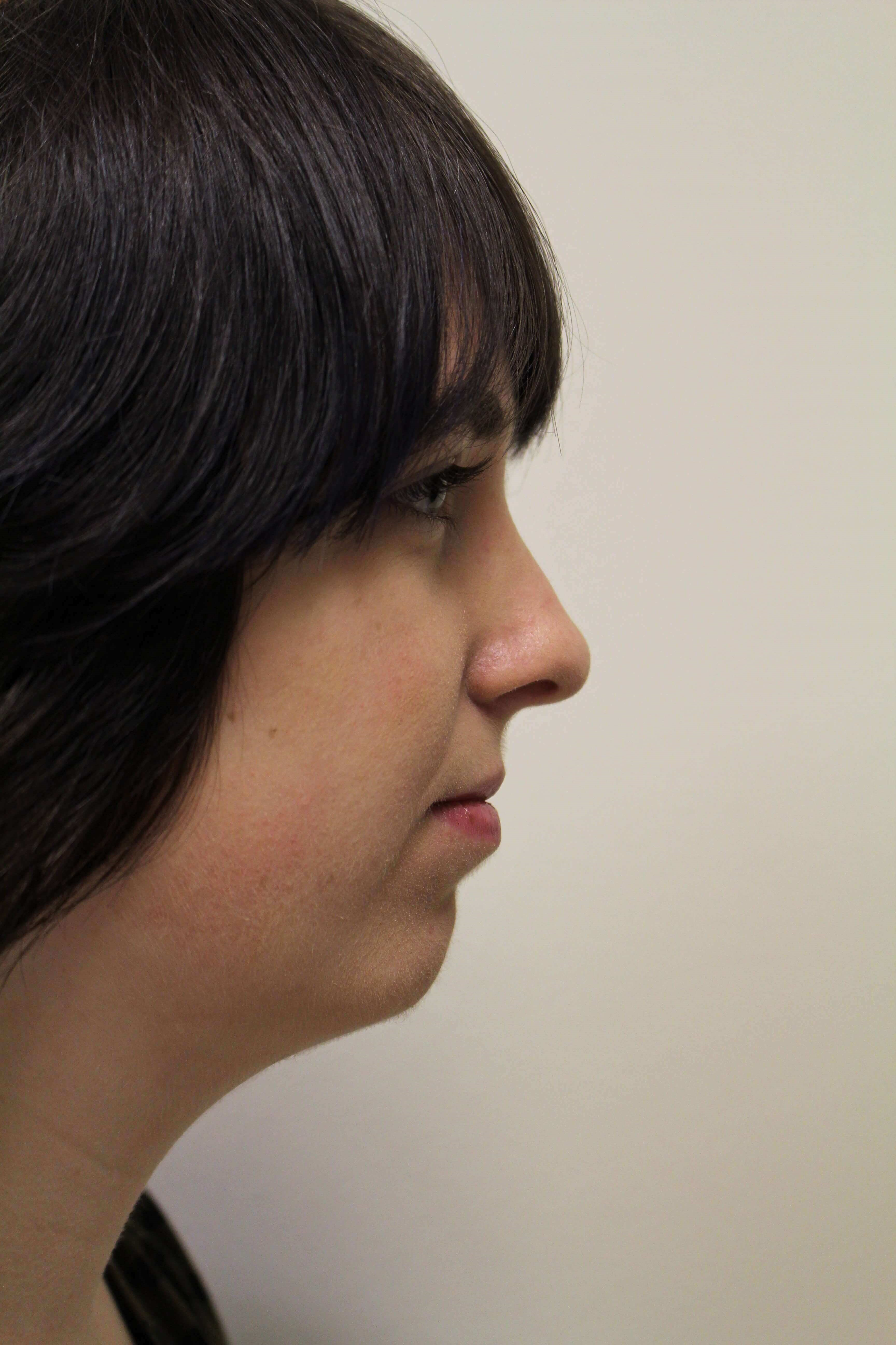 Chin Augmentation - Lateral Before