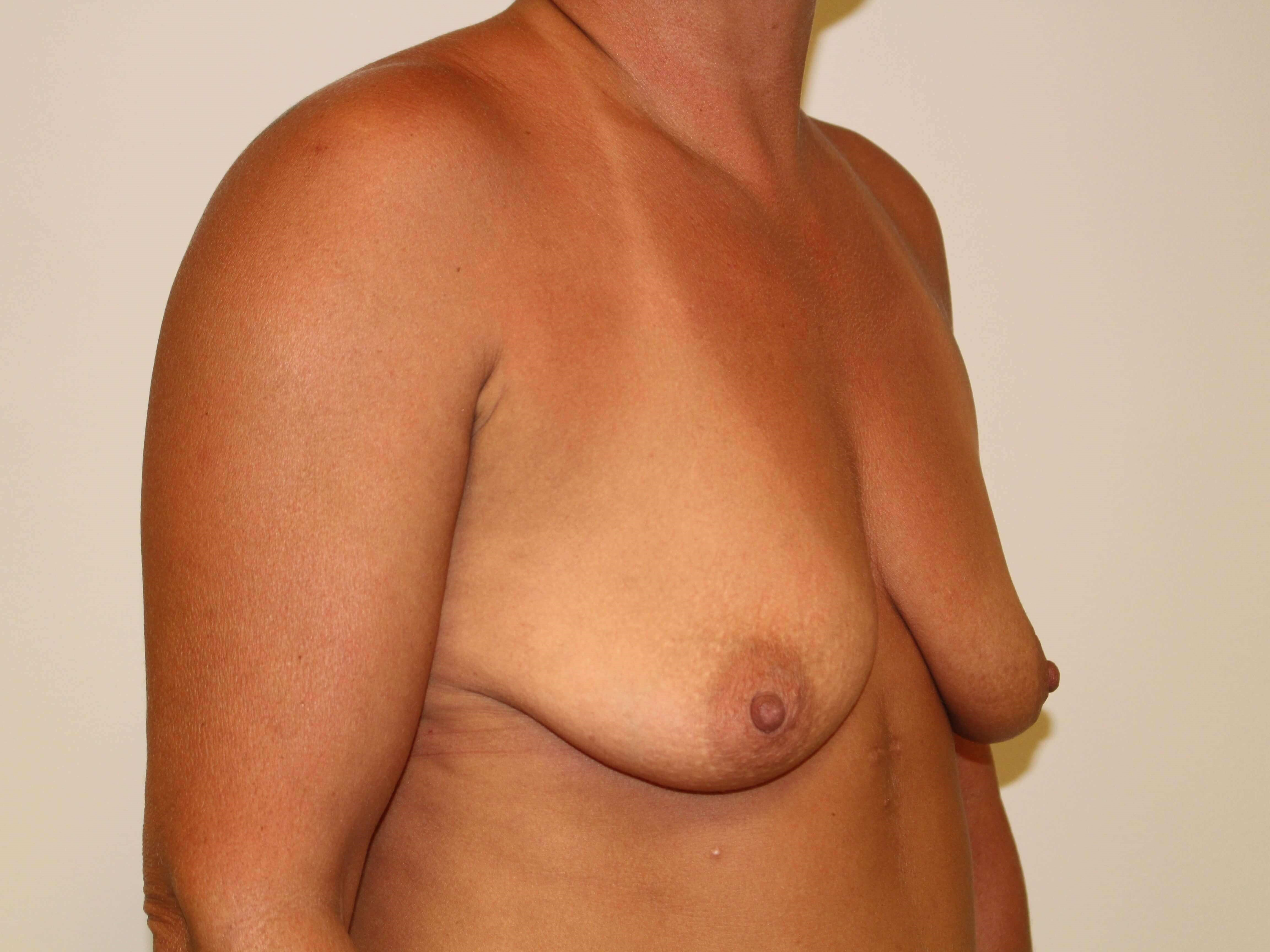 Breast Augmentation-3/4 Before