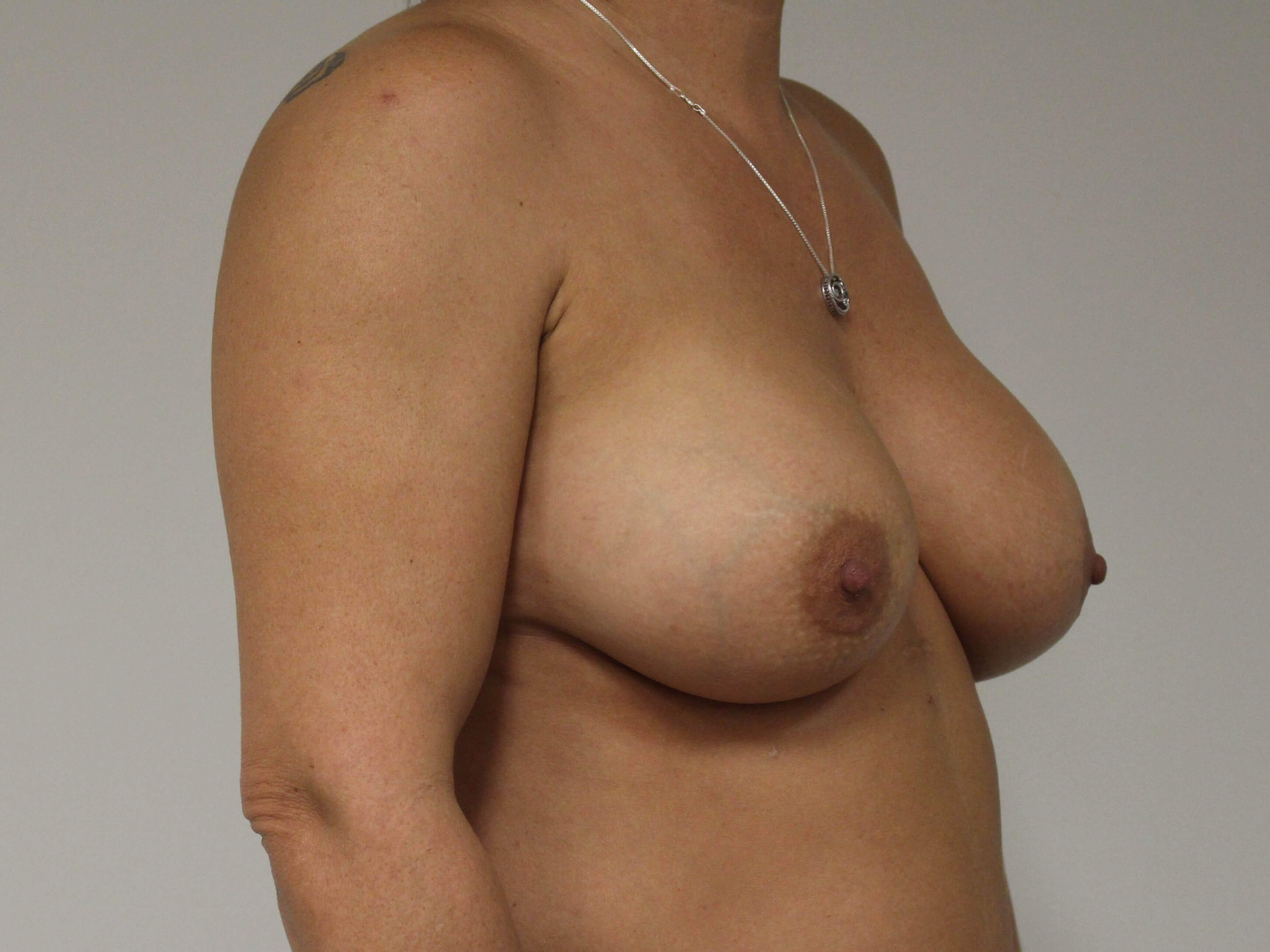 Breast Augmentation-3/4 After