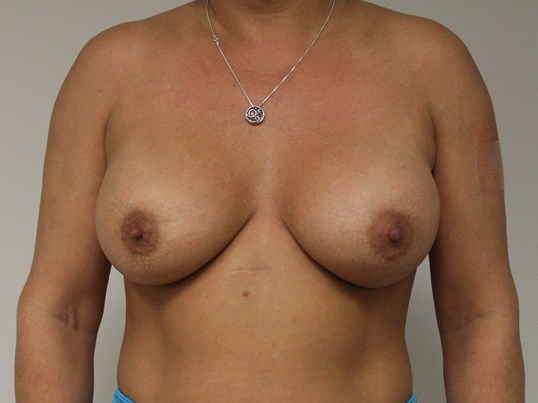 Breast Augmentation-Anterior After