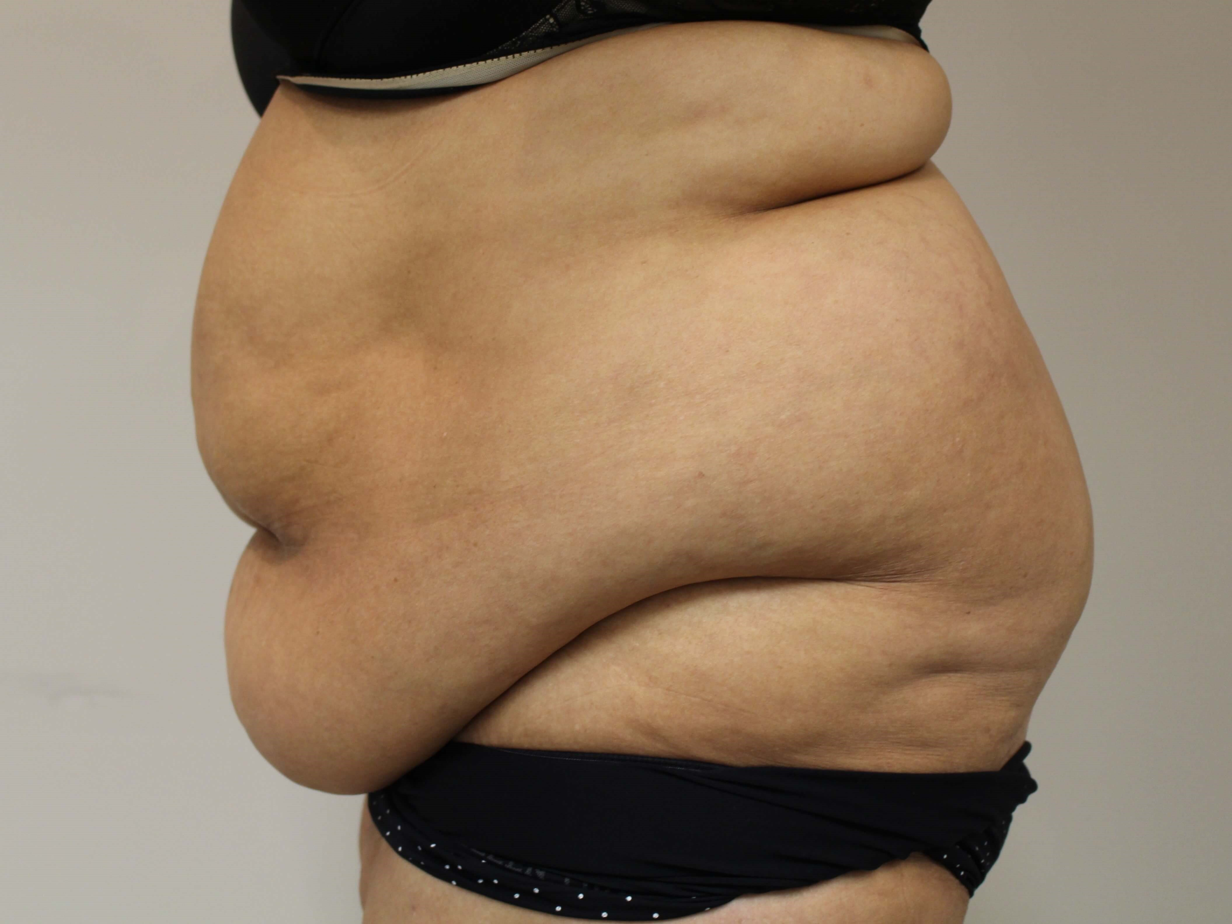Abdominoplasty - lateral Before