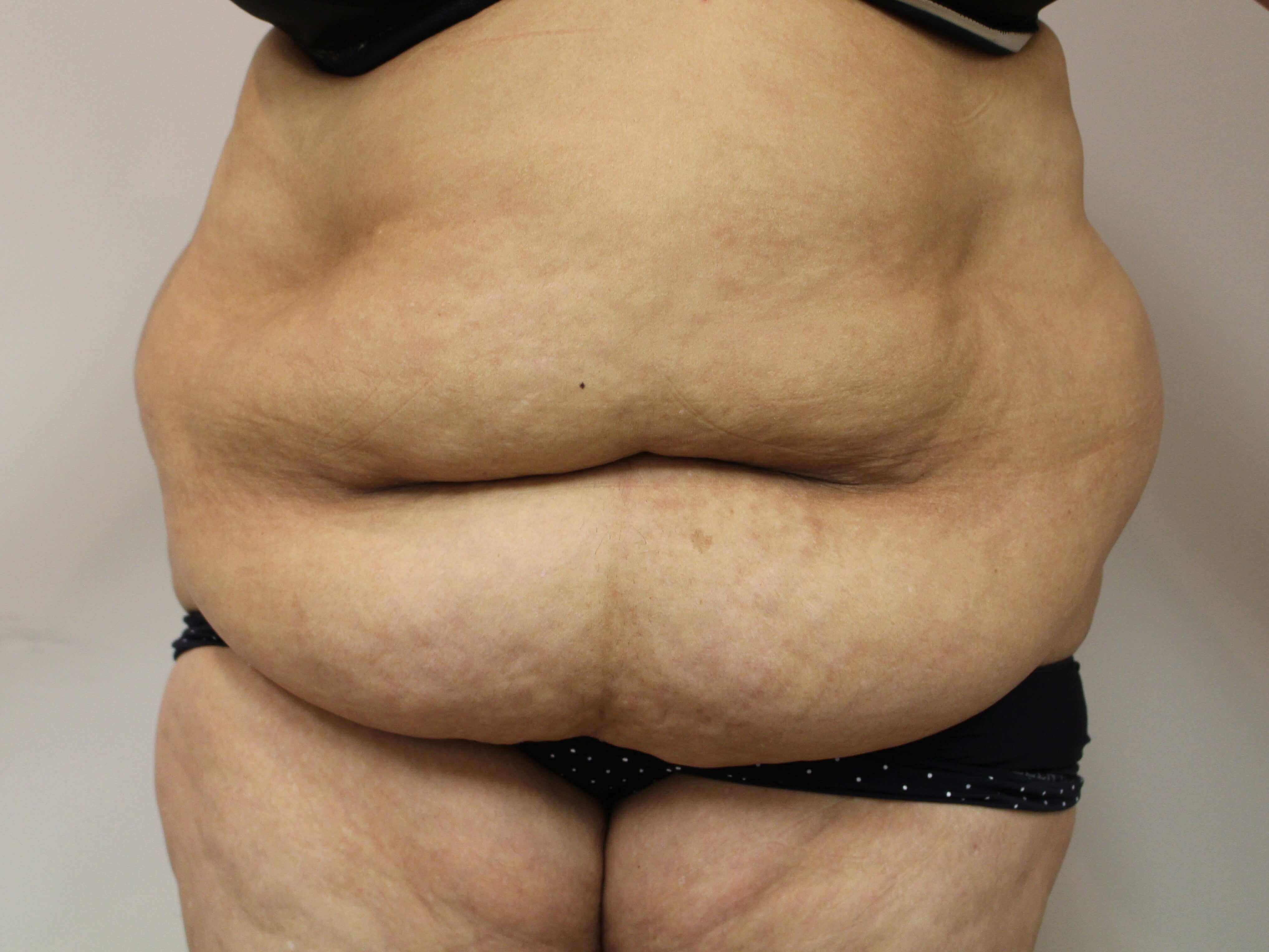 Abdominoplasty - anterior Before