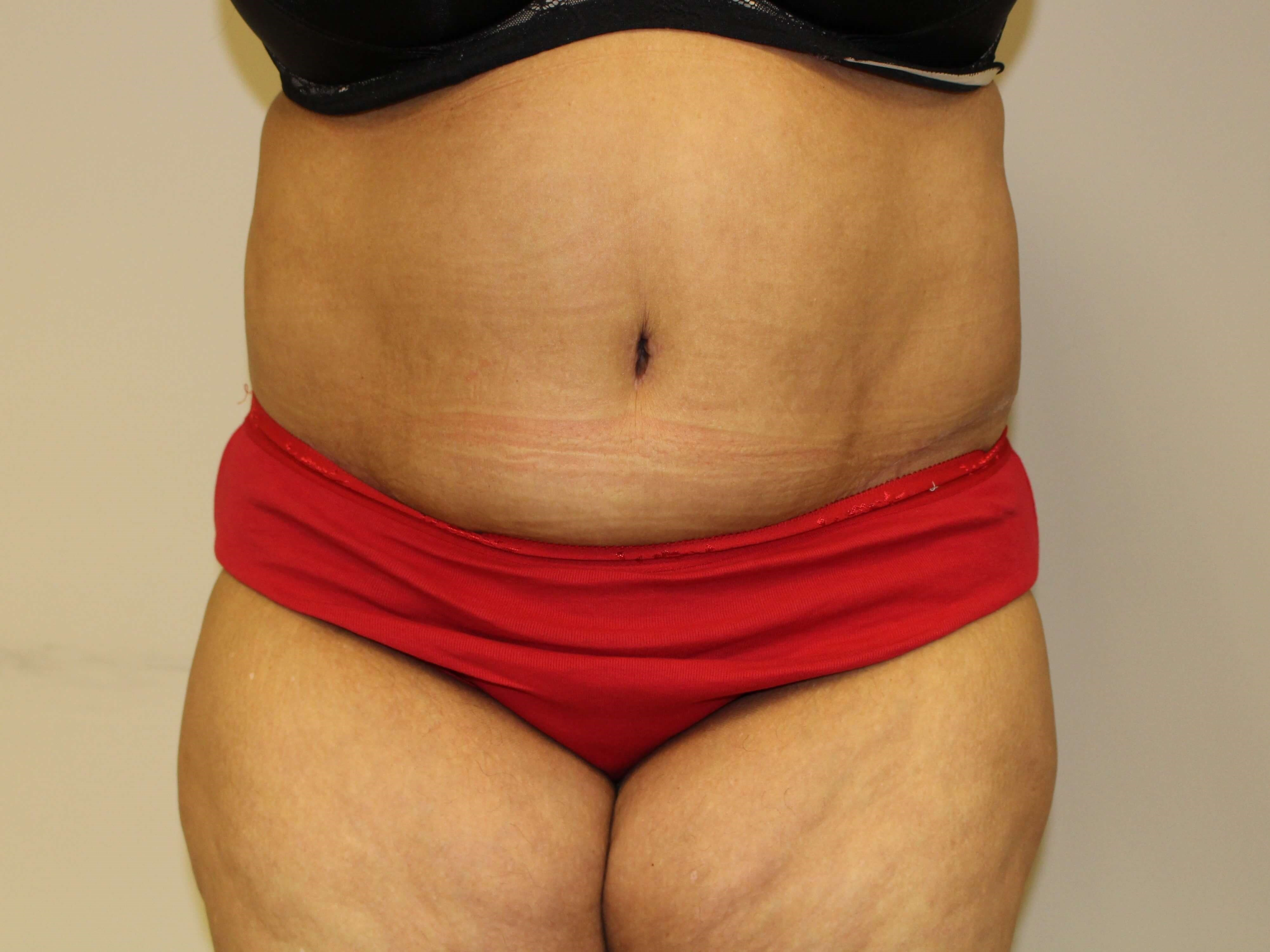 Abdominoplasty - anterior After