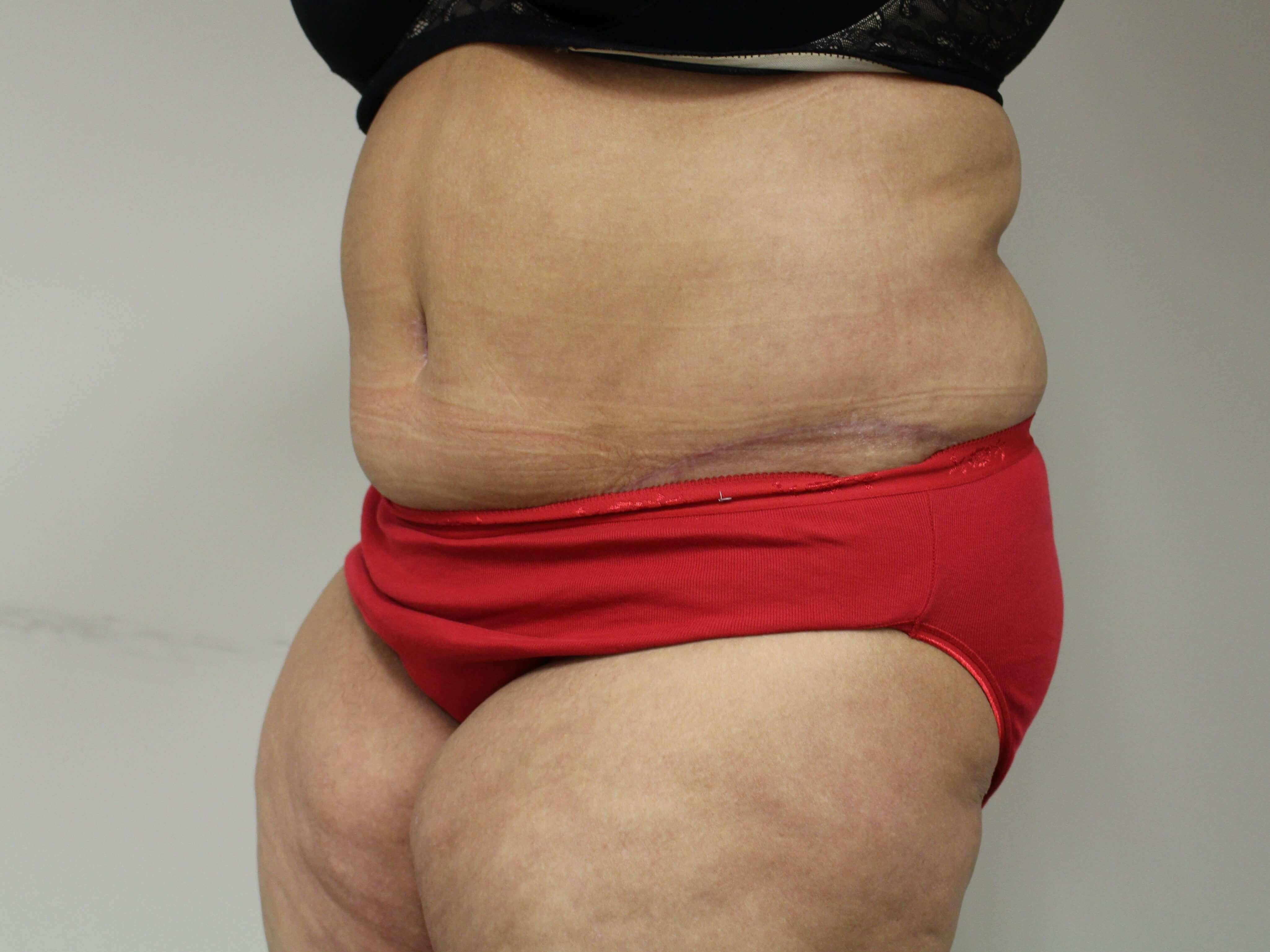 Abdominoplasty - 3/4 After