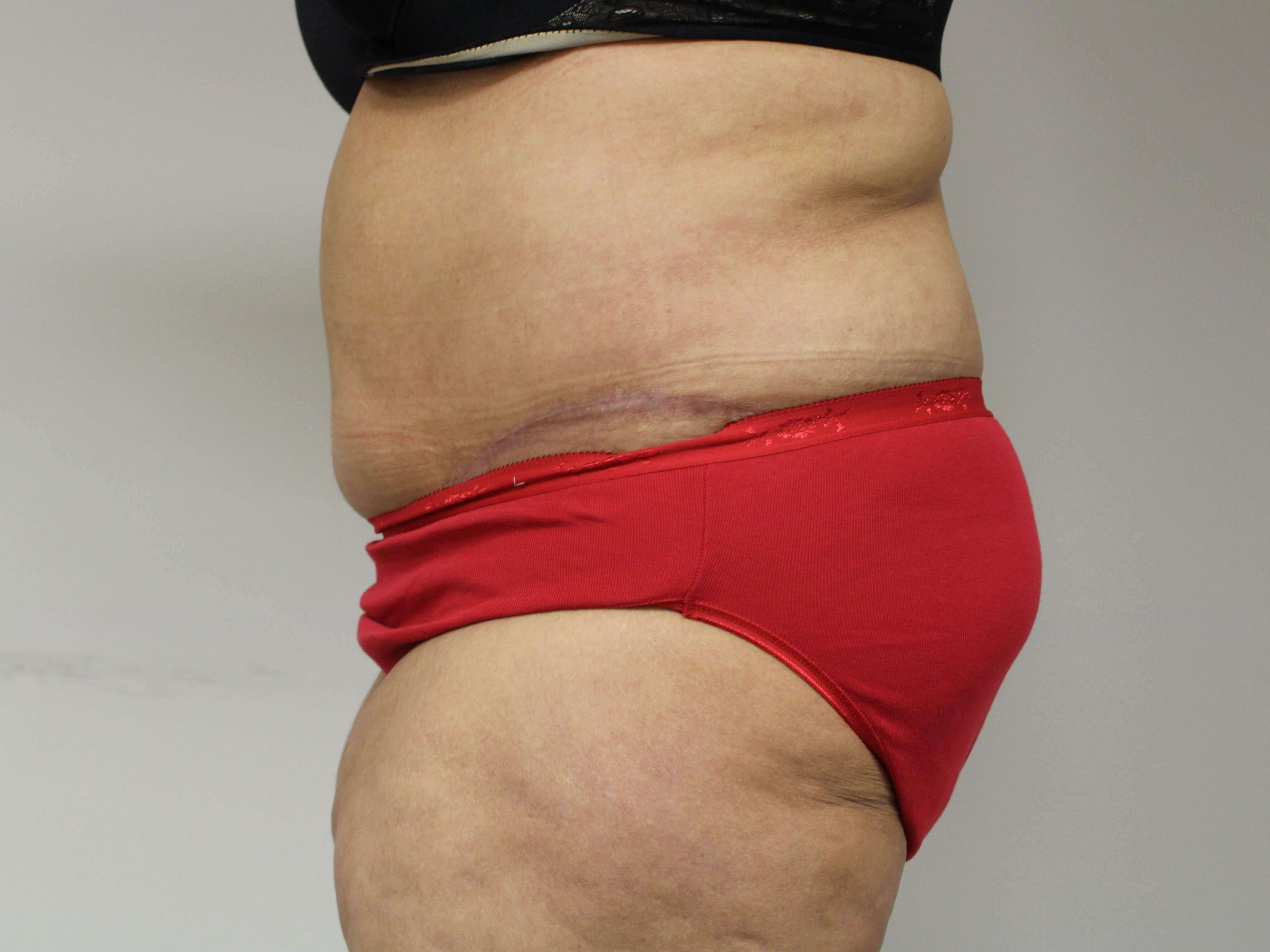 Abdominoplasty - lateral After