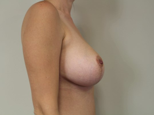 Mastopexy with Implants After