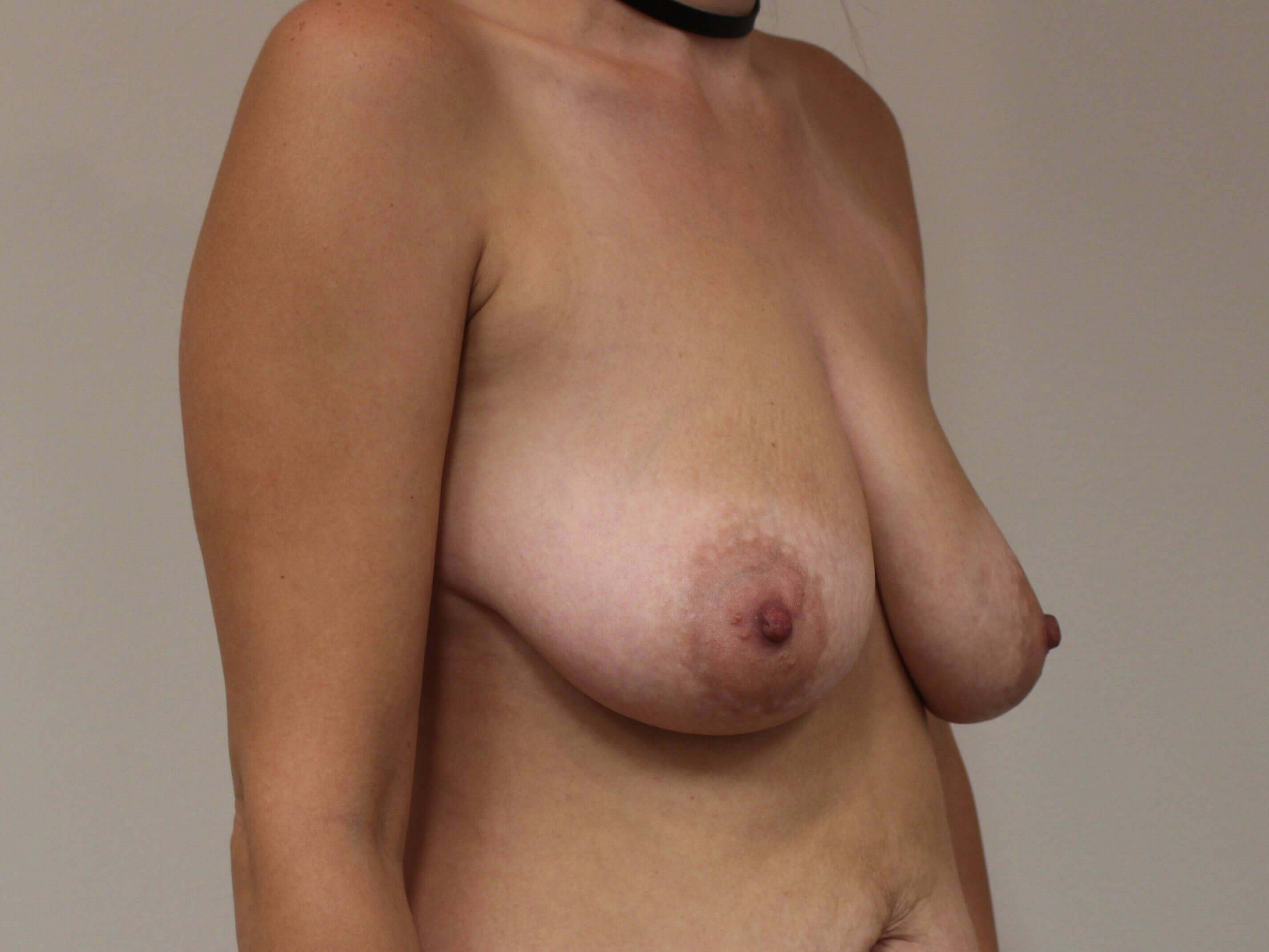 Mastopexy with Implants Before