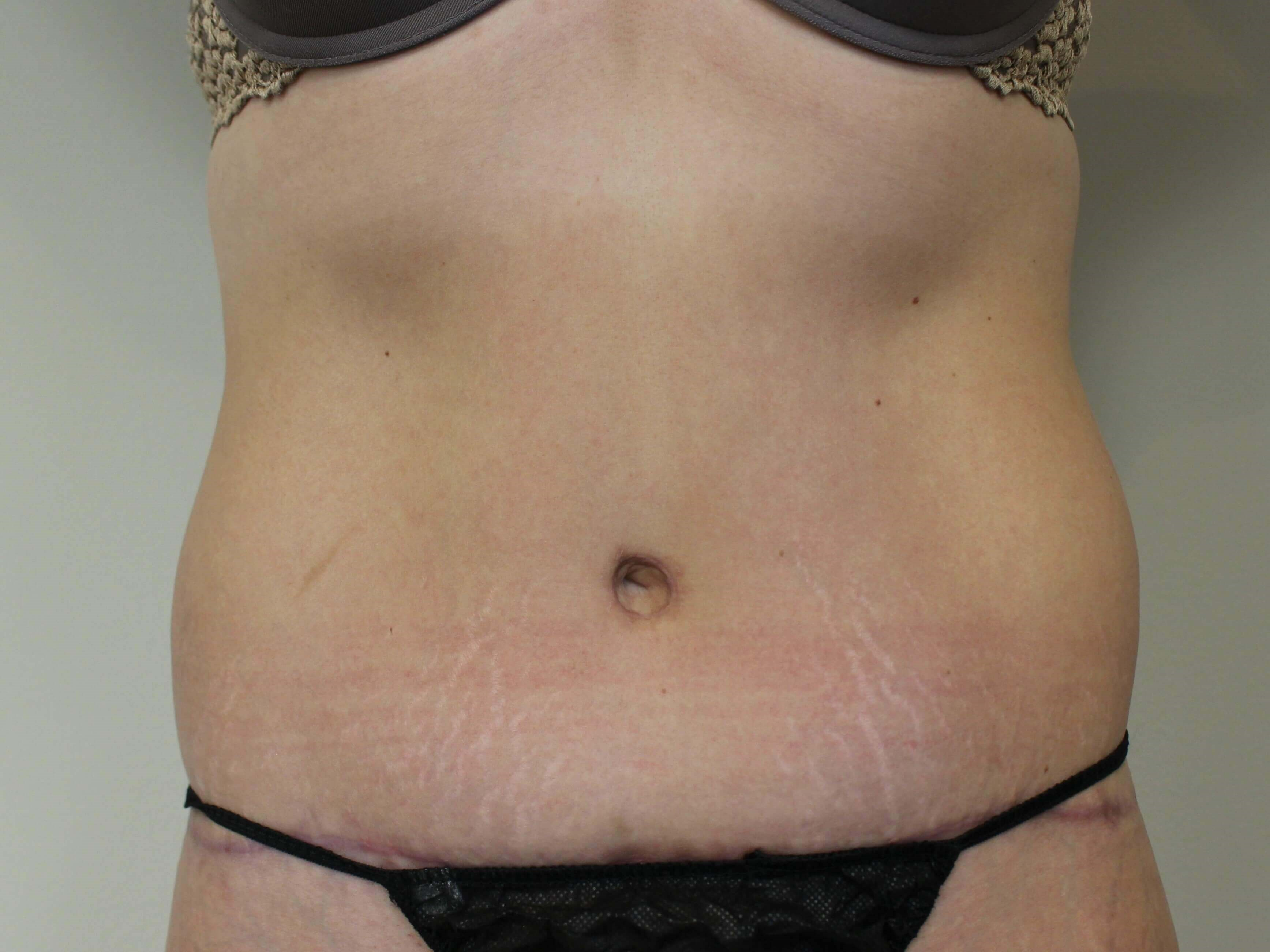 Tummy Tuck 4 Months After