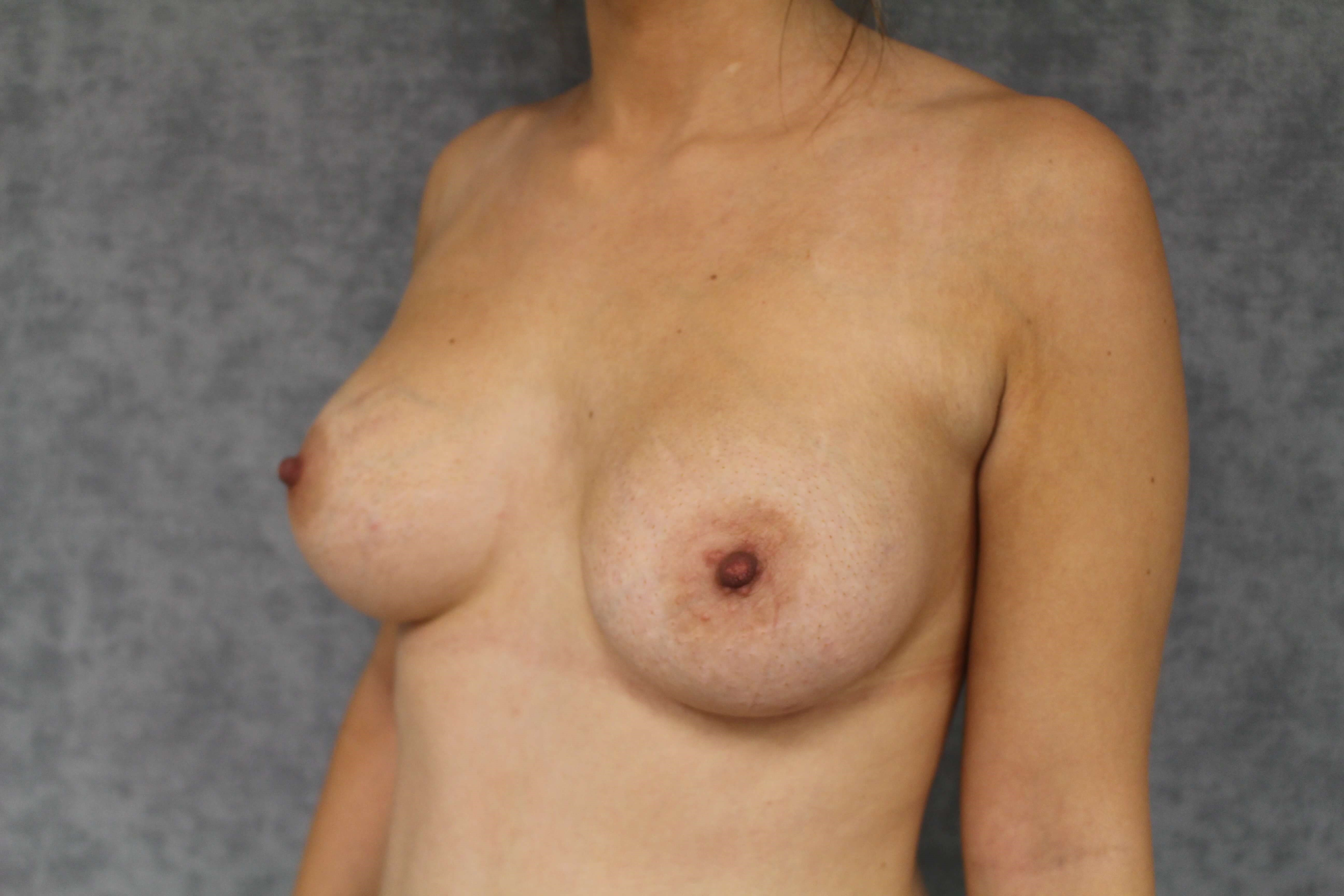 325cc Silicone Implants After