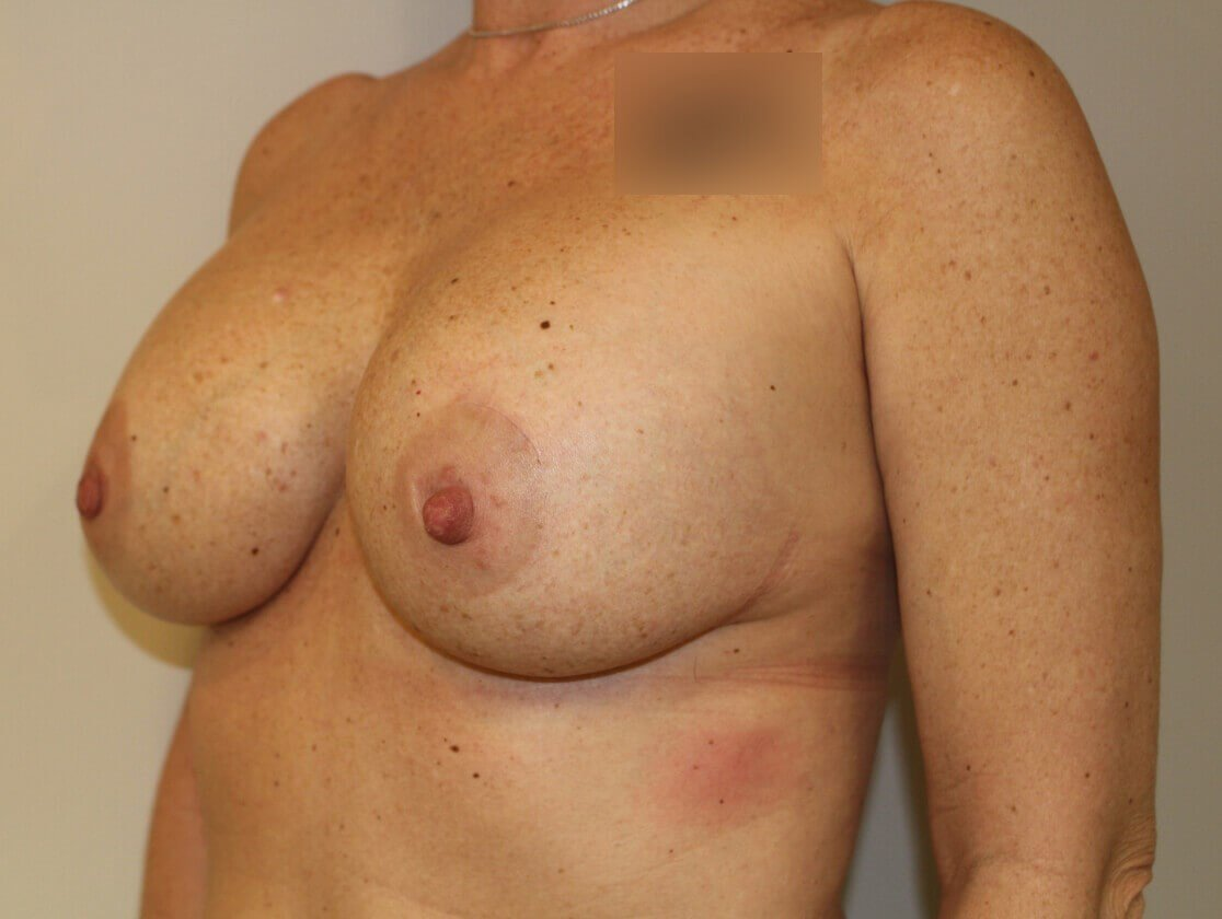 Double Mastectomy Before