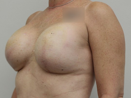 Double Mastectomy After