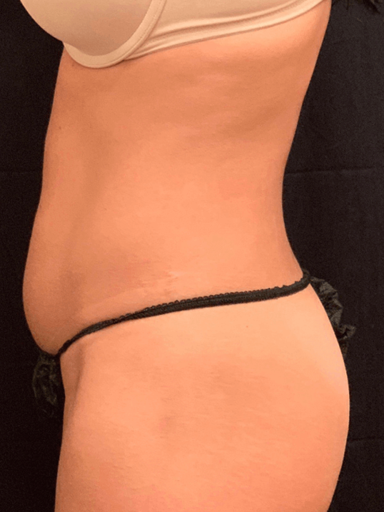 CoolSculpting Photos Before