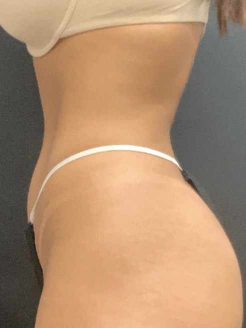 CoolSculpting Photos After