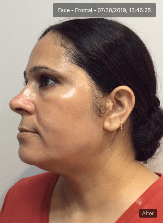 Enlighten Peel After
