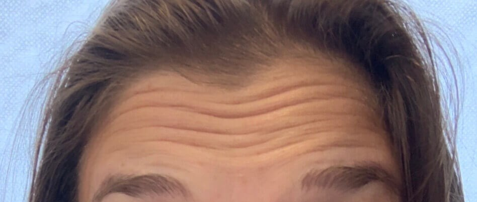 Botox Forehead Lines Before