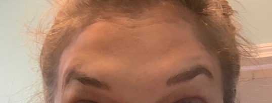 Botox Forehead Lines After