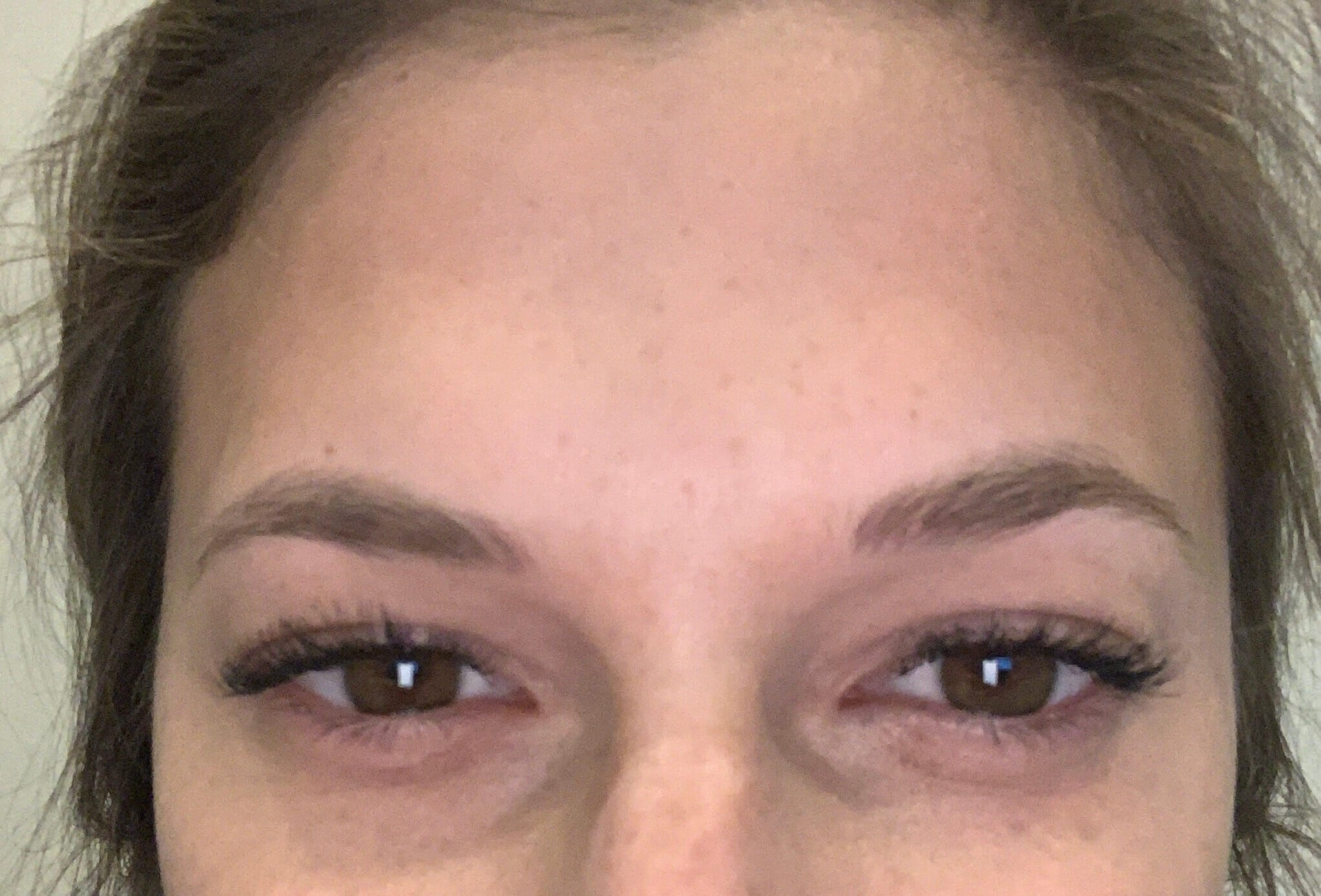 Botox Glabella After