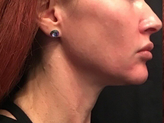 Ultherapy Lower Face After