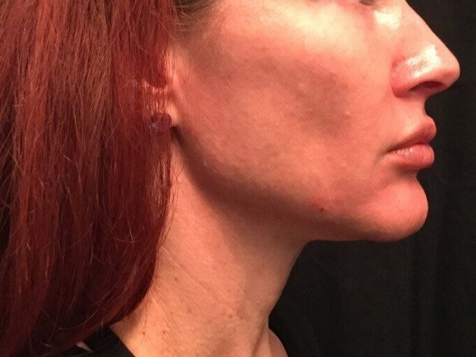 Ultherapy and YLift Combo After
