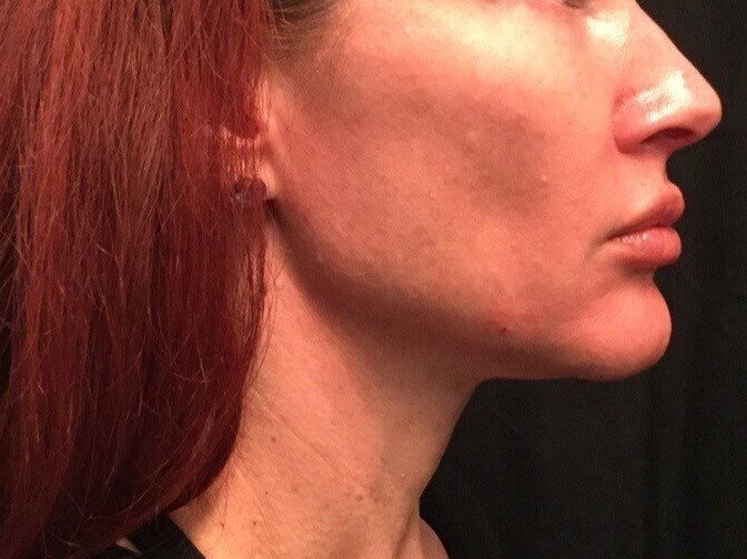 Post Ultherapy B&A of YLift After