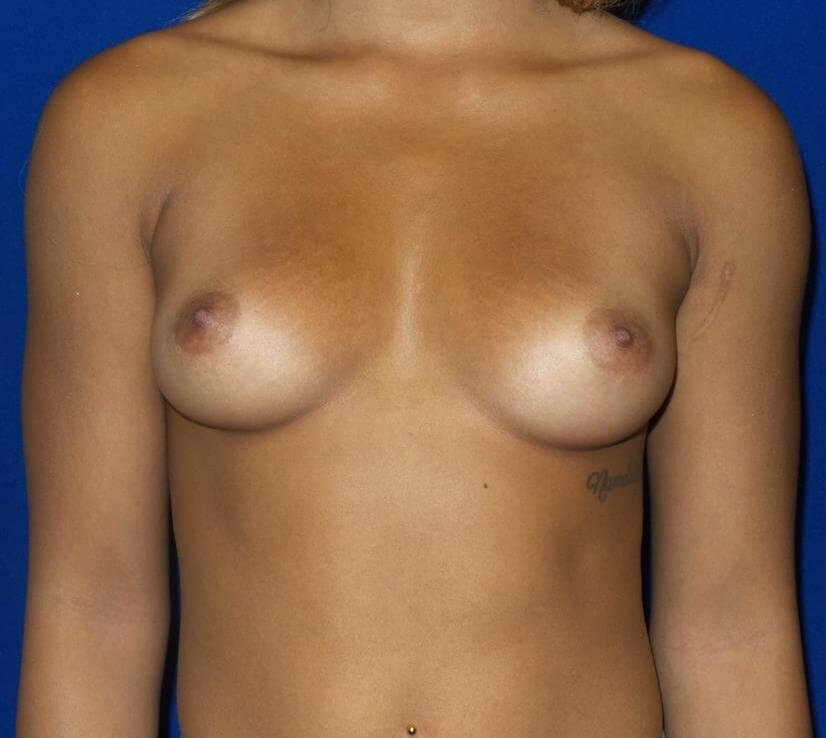 Saline breast aug front view Before Implants