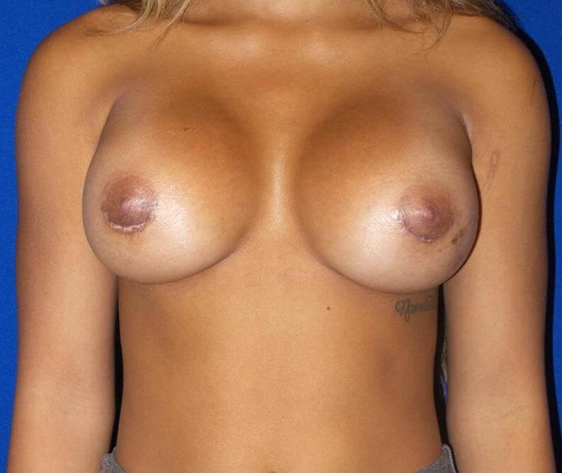 Saline breast aug front view After 350cc Saline Implants