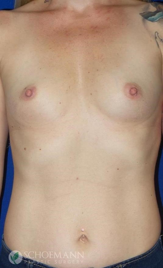 Silicone Breast Aug Front View Before Implants