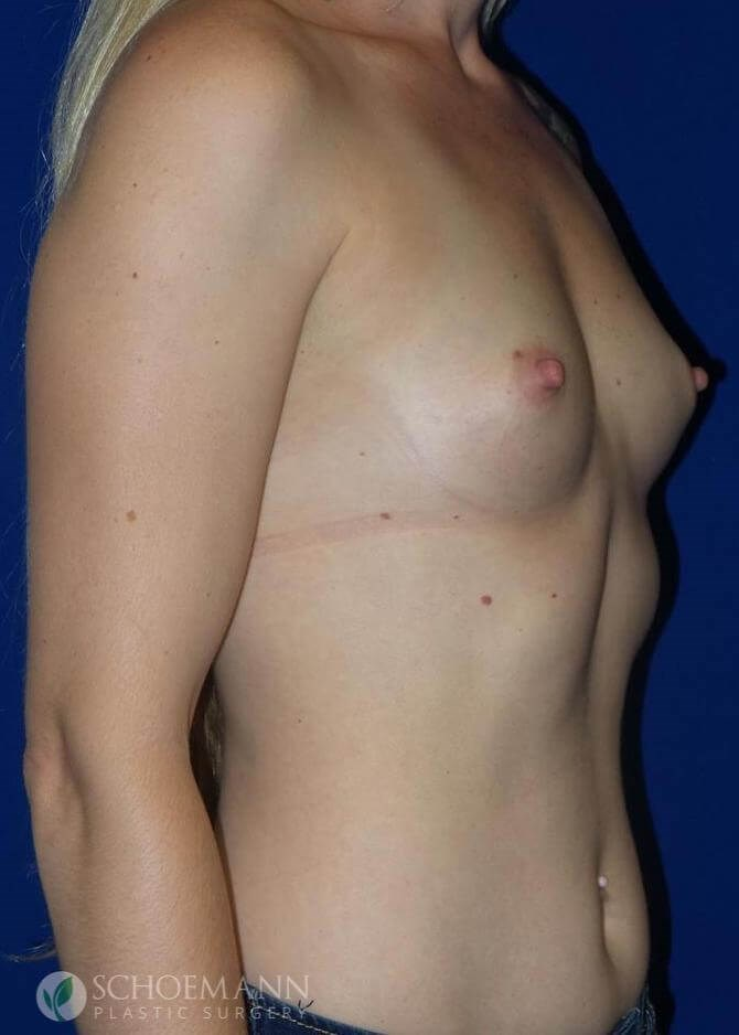 Silicone Breast Aug Side View Before Implants