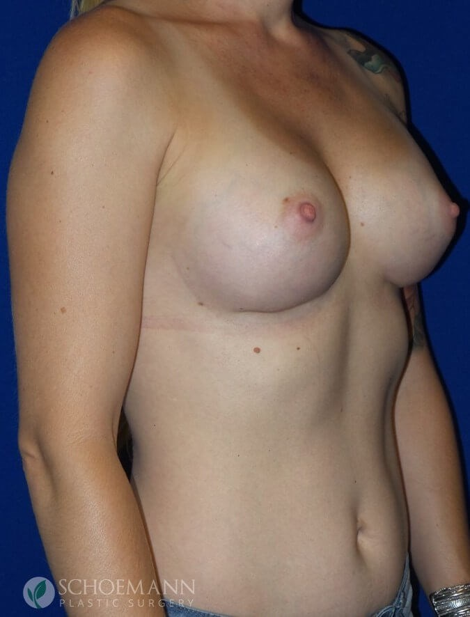 Silicone Breast Aug Side View After 350cc Silicone Implants