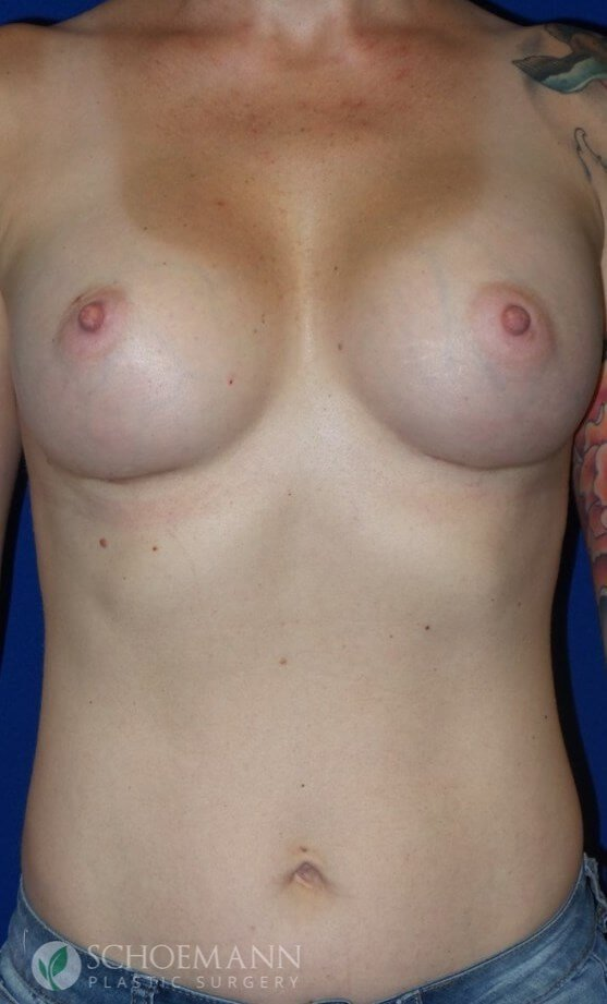 Silicone Breast Aug Front View After 350cc Silicone Implants