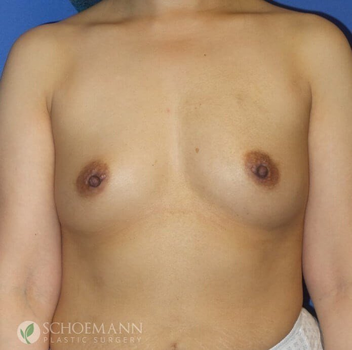 Silicone Breast Aug Front View Before