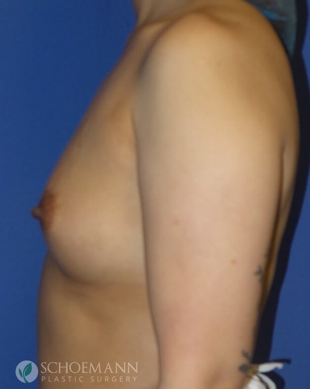 Silicone Breast Aug Side View Before