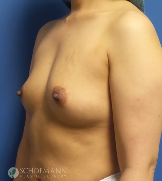 Silicone Breast Aug Oblique Before