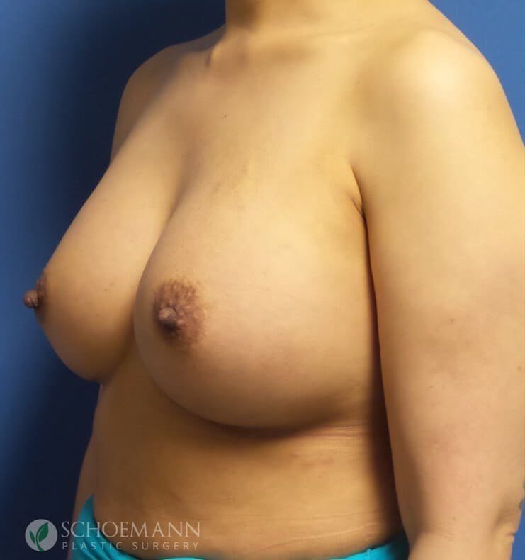 Silicone Breast Aug Oblique After 375cc Implants