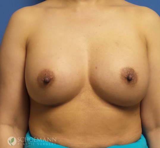 Silicone Breast Aug Front View After 375cc Implants