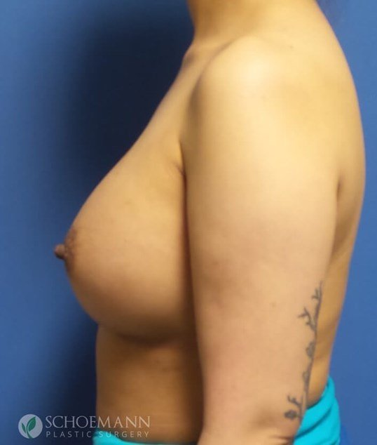 Silicone Breast Aug Side View After 375cc Implants