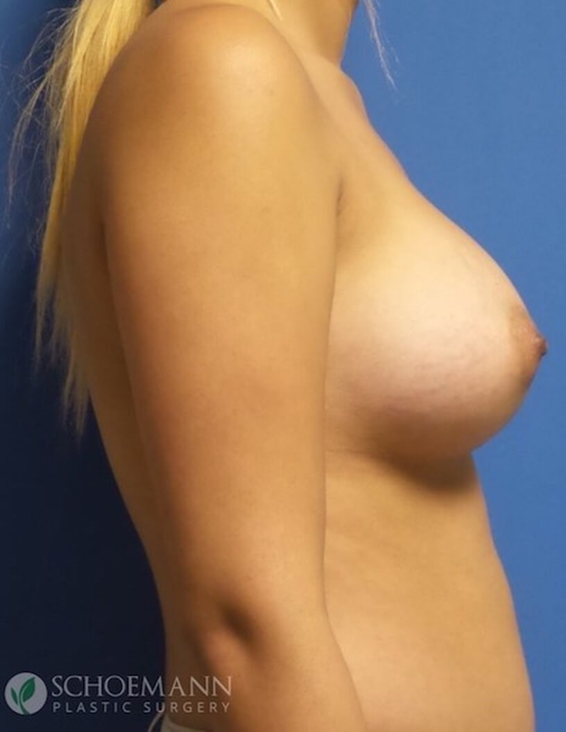 425cc Silicone Aug side view After 425cc Silicone Implants