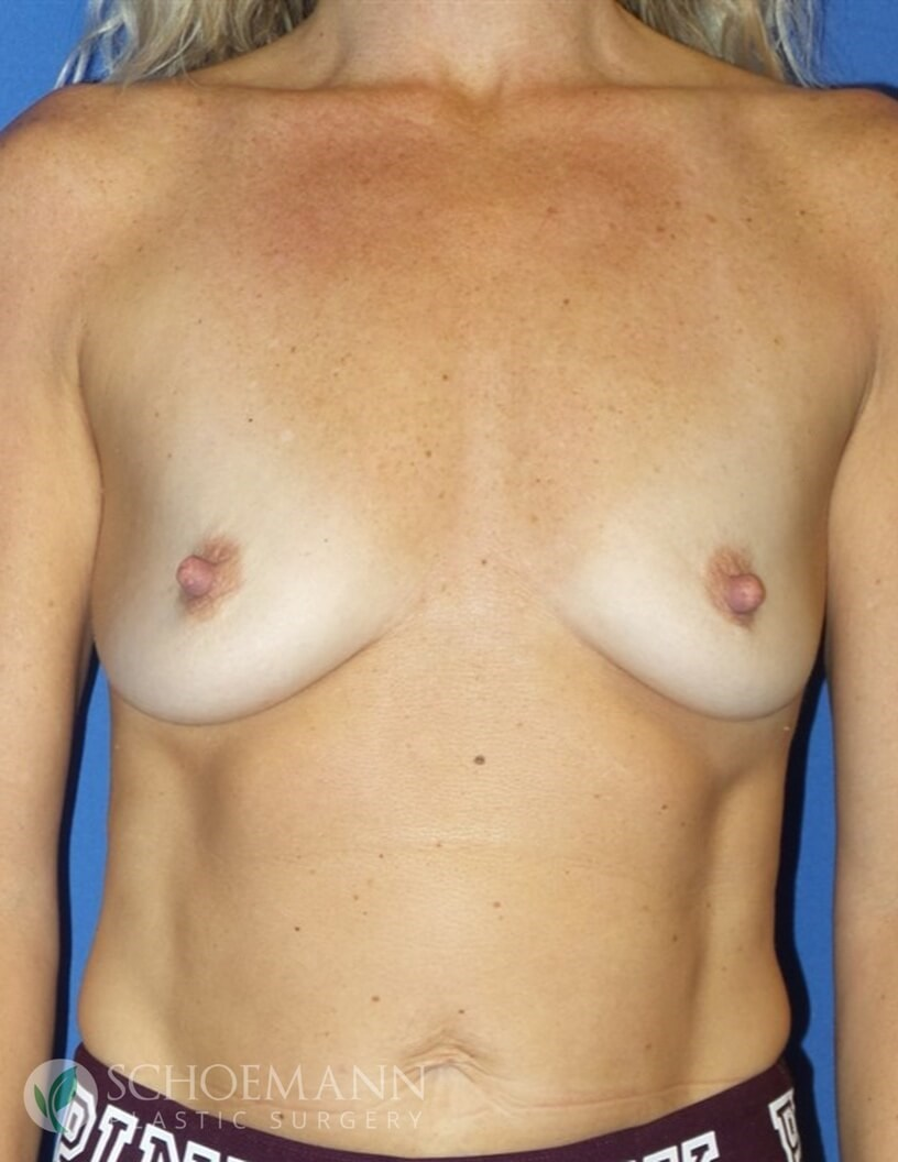 Silicone Breast Aug Front View B-Cup Before