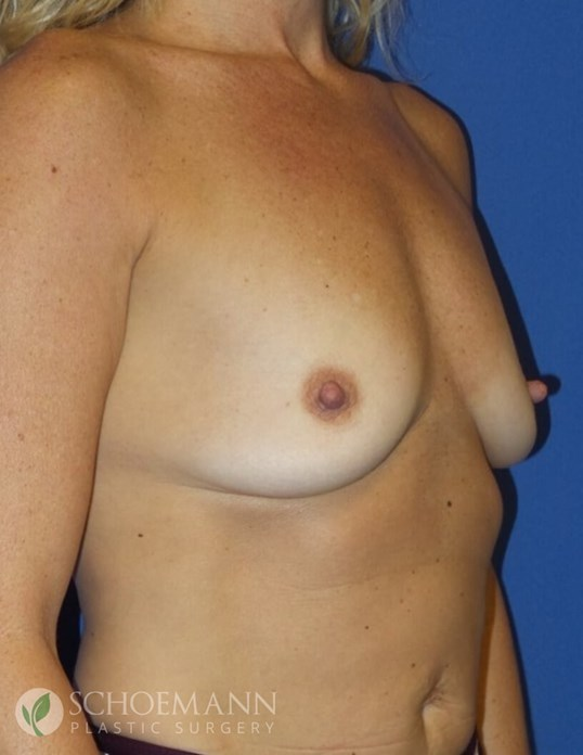 Silicone Breast Aug Oblique B-Cup Before
