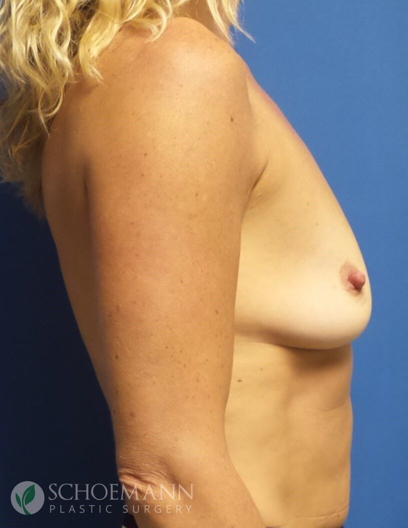 Silicone Breast Aug Side View B-Cup Before