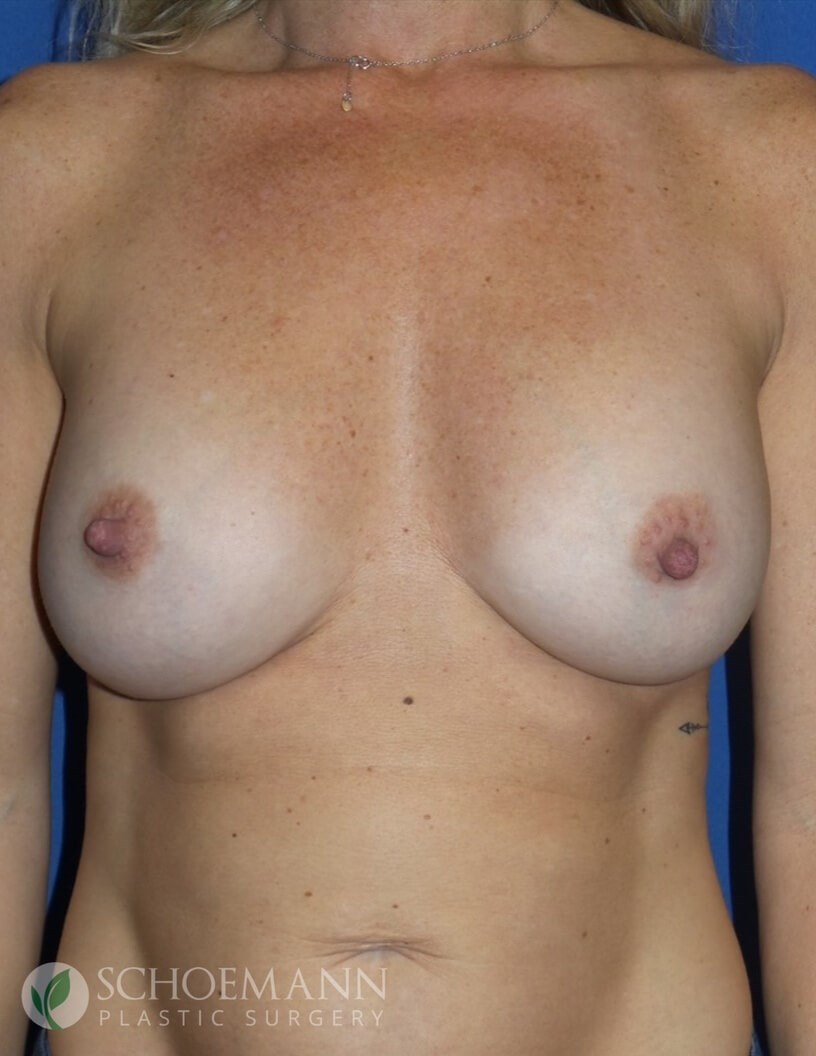 Silicone Breast Aug Front View After