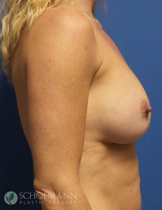 Silicone Breast Aug Side View After