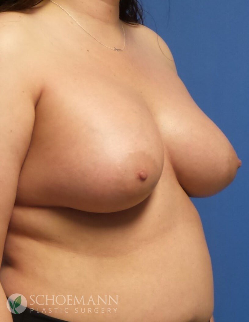 Silicone Breast Aug Oblique After