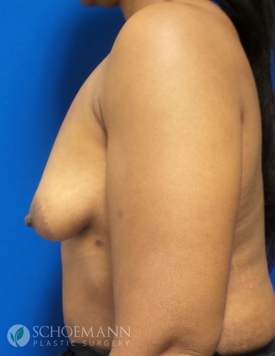Breast Aug and Lift Side View Before