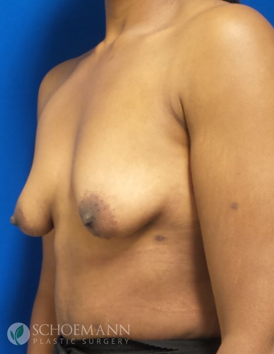 Breast Aug/Lift Partial View Before