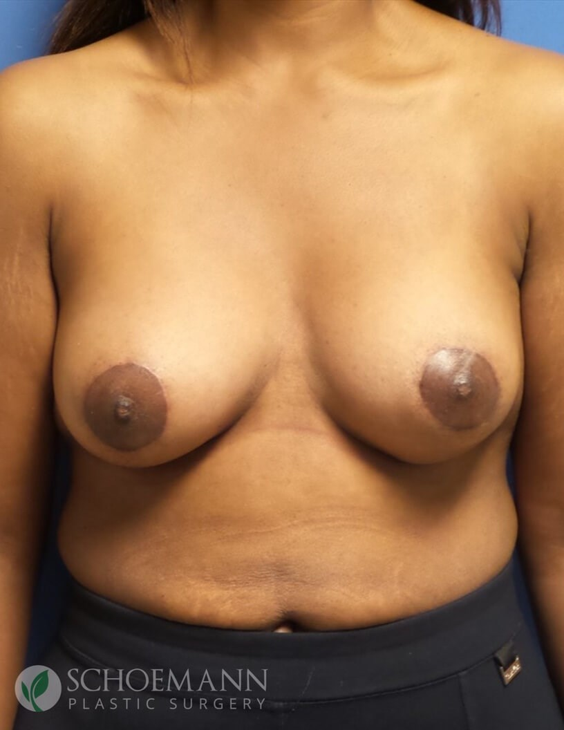 Breast Aug and Lift Front View After Moderate Plus Implants