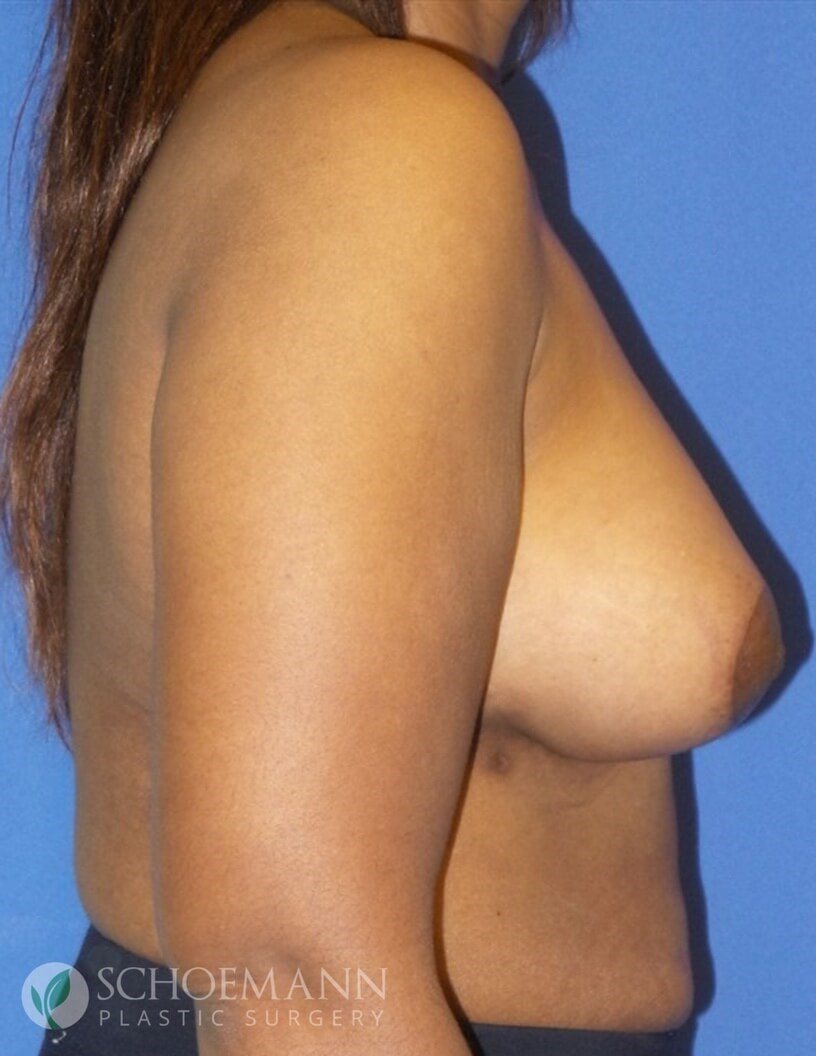 Breast Aug and Lift Side View After