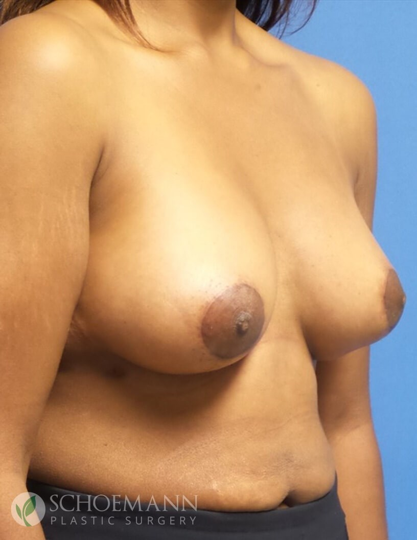 Breast Aug/Lift Partial View After